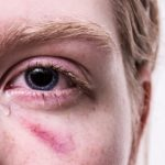 When to Seek a Second Opinion in Your Personal Injury Case